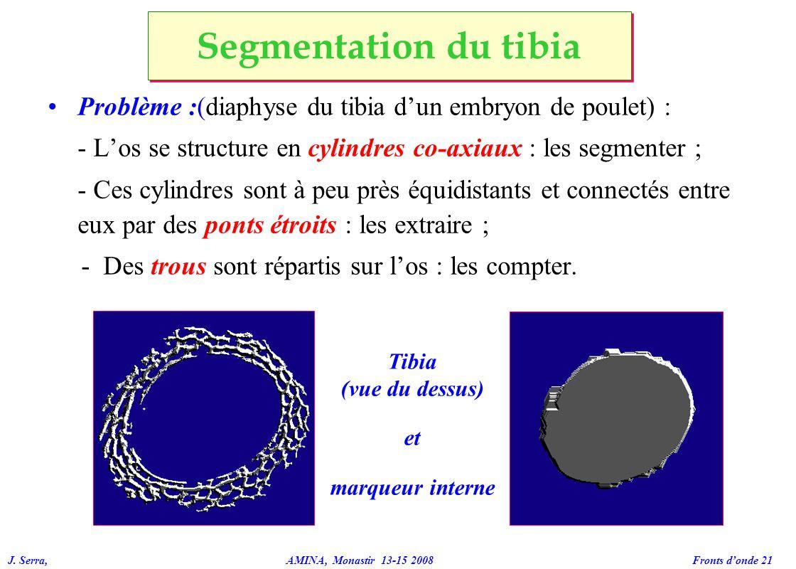 Segmentation du tibia Problème :(diaphyse du tibia d'un embryon de poulet) : - L'os se structure en cylindres co-axiaux : les segmenter ;