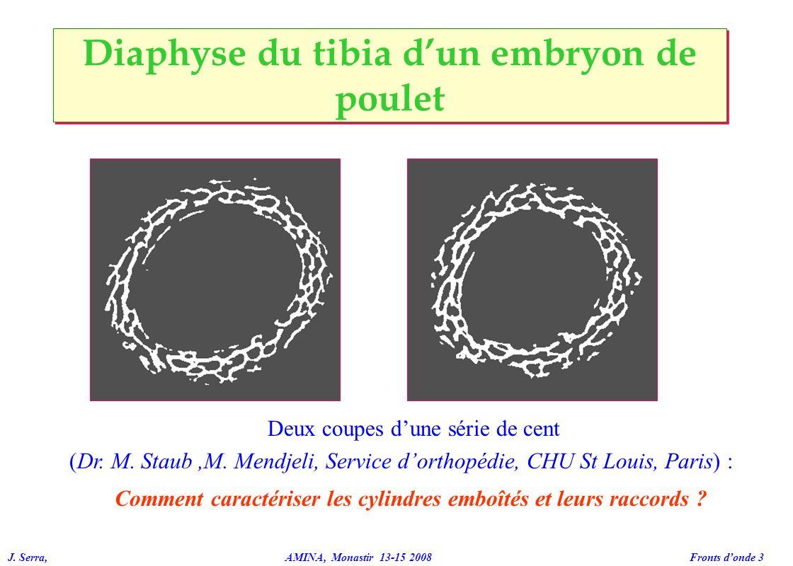 Diaphyse du tibia d'un embryon de poulet