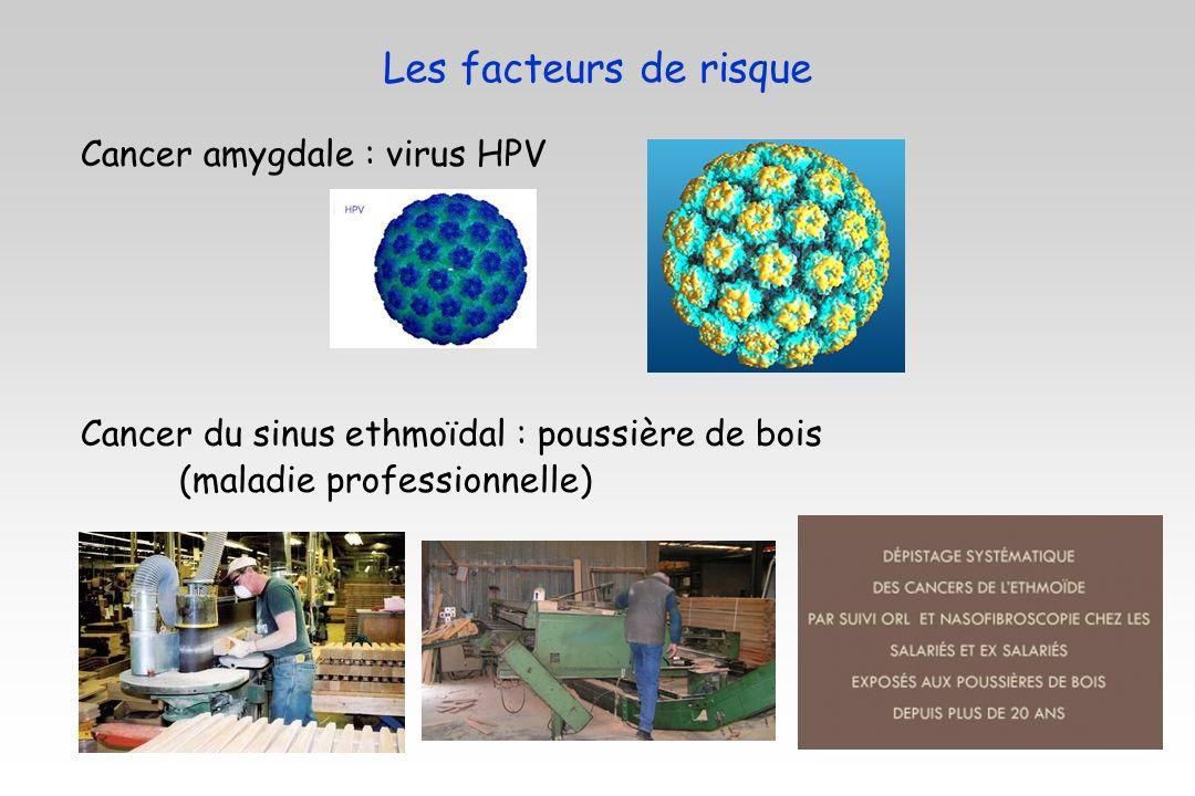 Les facteurs de risque Cancer amygdale : virus HPV