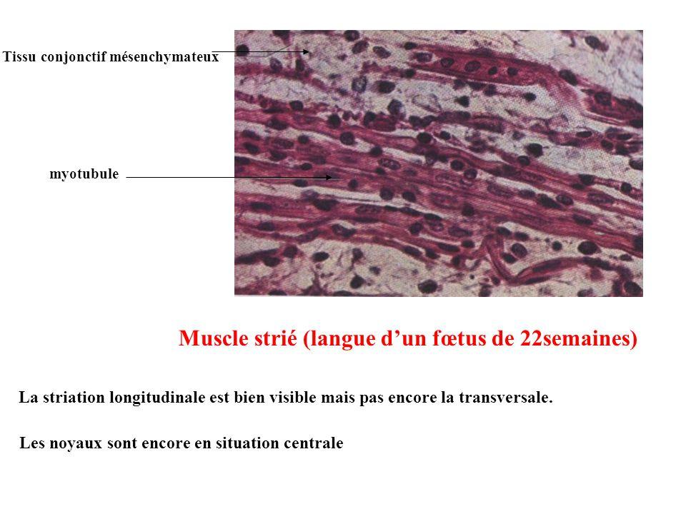 Muscle strié (langue d'un fœtus de 22semaines)