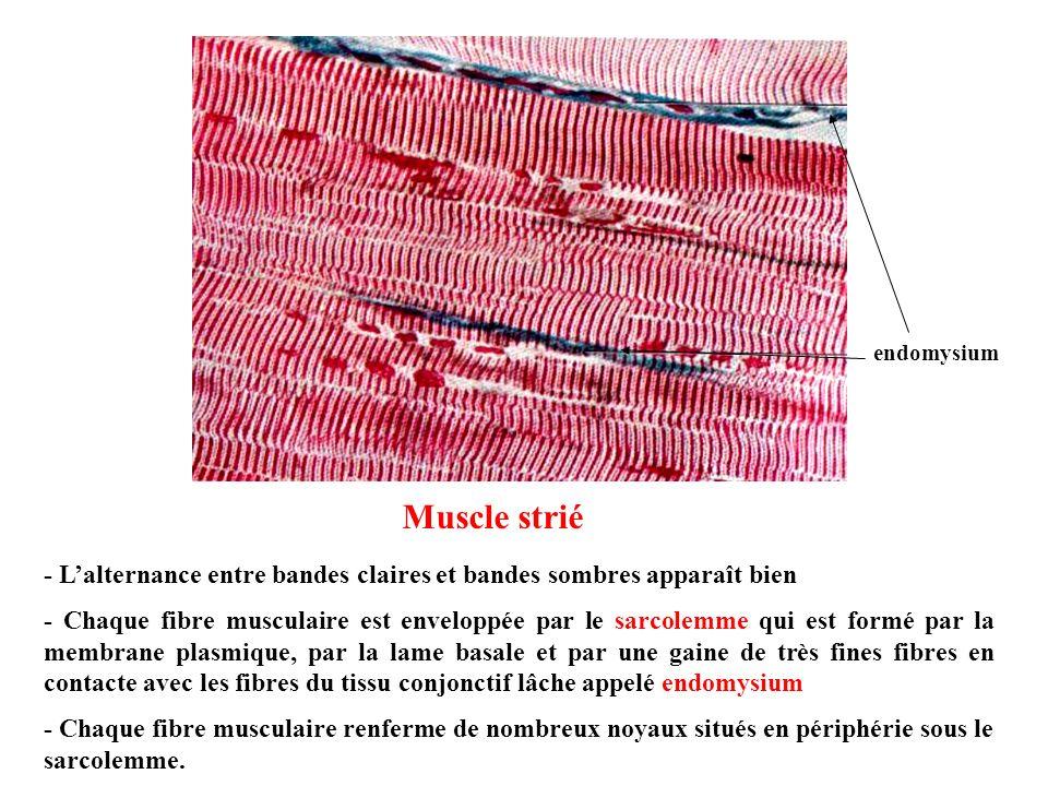 endomysium Muscle strié. - L'alternance entre bandes claires et bandes sombres apparaît bien.