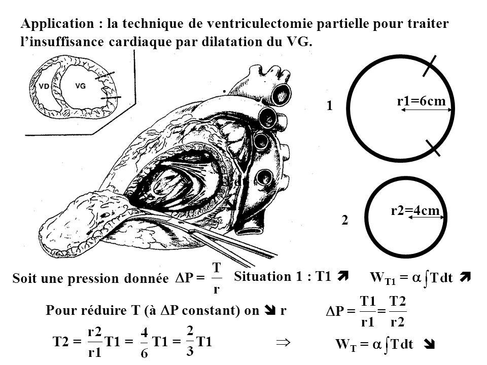 Application : la technique de ventriculectomie partielle pour traiter l'insuffisance cardiaque par dilatation du VG.