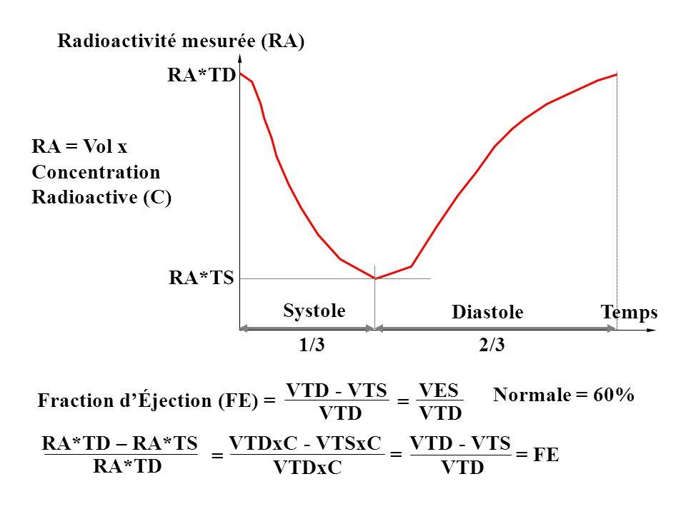 Radioactivité mesurée (RA)