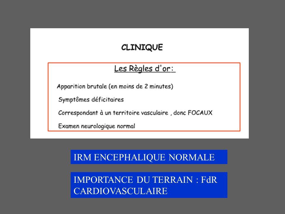 IRM ENCEPHALIQUE NORMALE