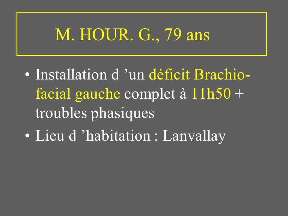 M. HOUR. G., 79 ans Installation d 'un déficit Brachio-facial gauche complet à 11h50 + troubles phasiques.