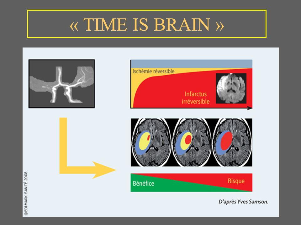 « TIME IS BRAIN » 36