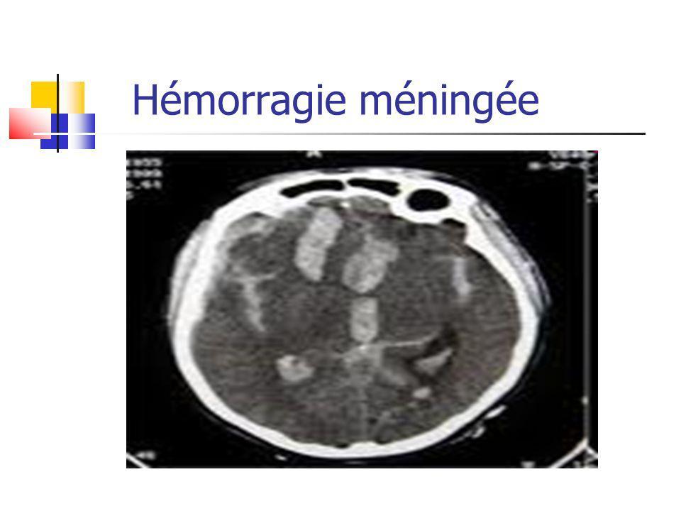 Hémorragie méningée