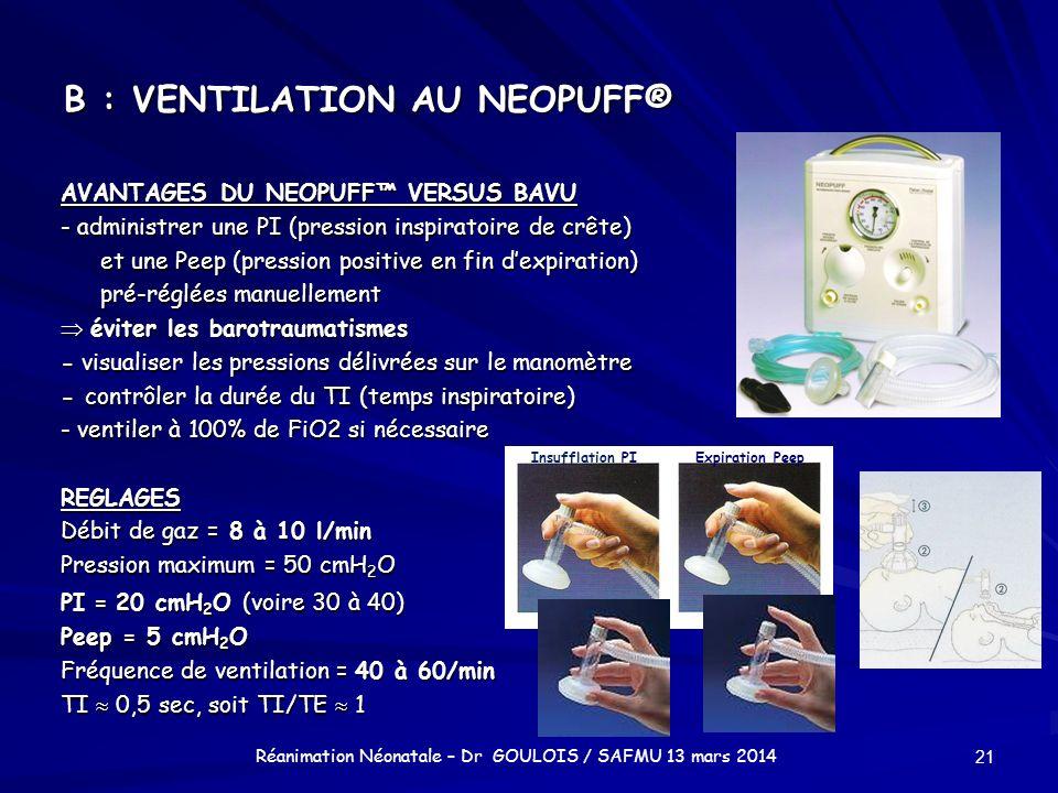 B : VENTILATION AU NEOPUFF®