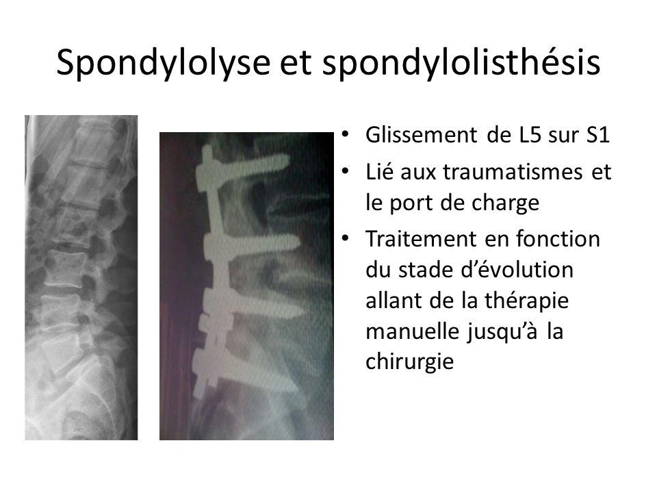 Spondylolyse et spondylolisthésis