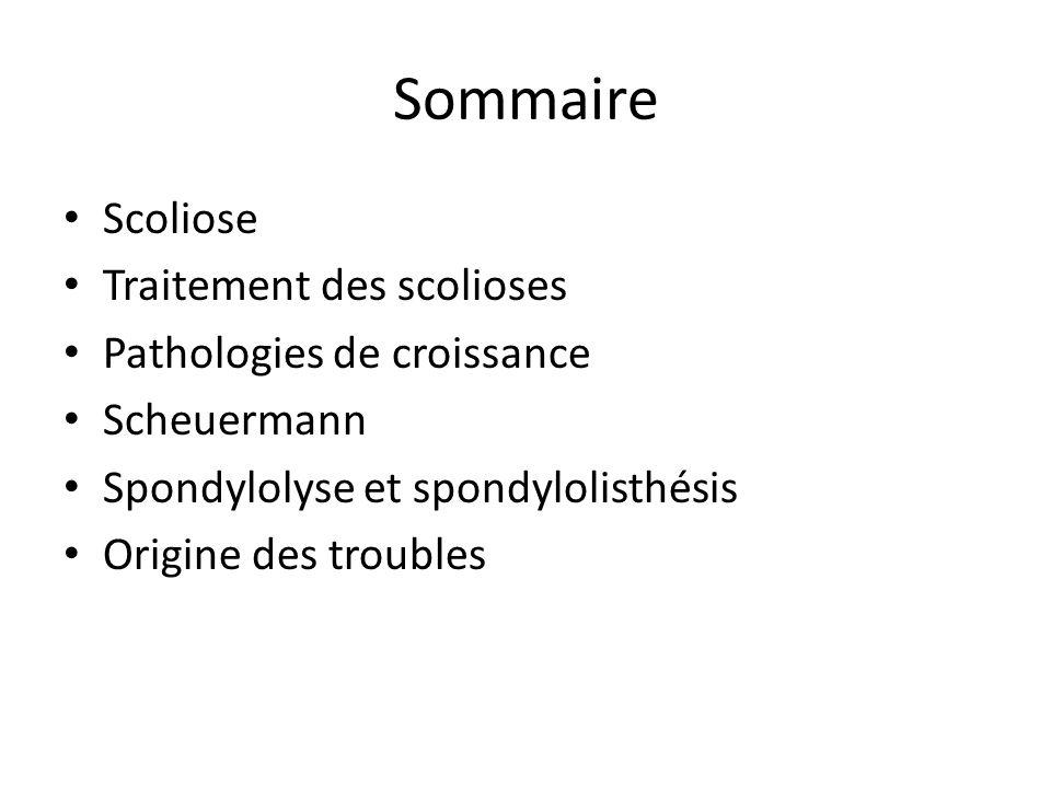 Sommaire Scoliose Traitement des scolioses Pathologies de croissance
