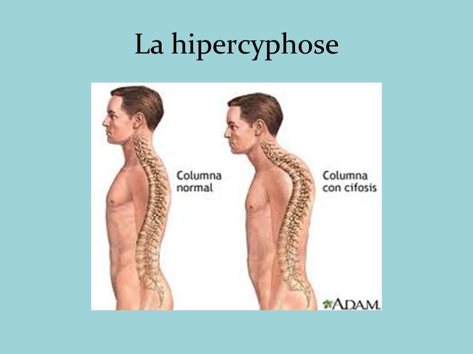 La hipercyphose