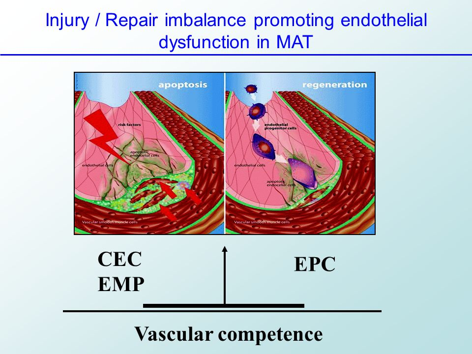 Injury / Repair imbalance promoting endothelial dysfunction in MAT