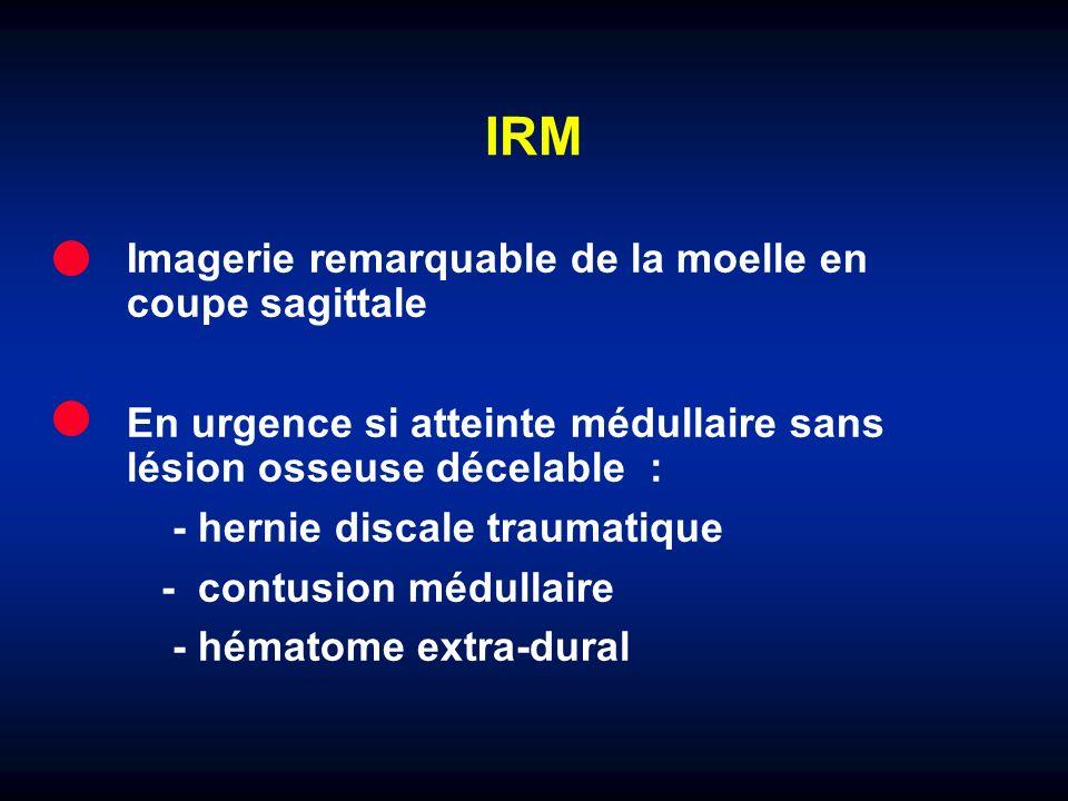 IRM Imagerie remarquable de la moelle en coupe sagittale