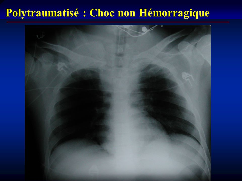 Polytraumatisé : Choc non Hémorragique