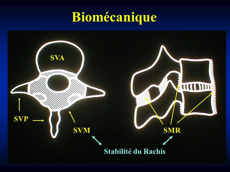Biomécanique SVA SVP SVM SMR Stabilité du Rachis