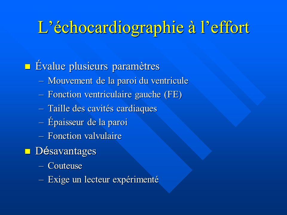 L'échocardiographie à l'effort