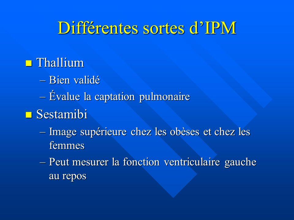 Différentes sortes d'IPM