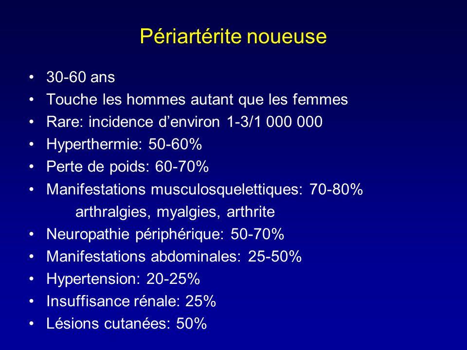 Périartérite noueuse 30-60 ans Touche les hommes autant que les femmes