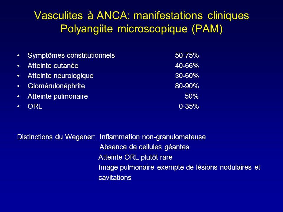 Vasculites à ANCA: manifestations cliniques Polyangiite microscopique (PAM)