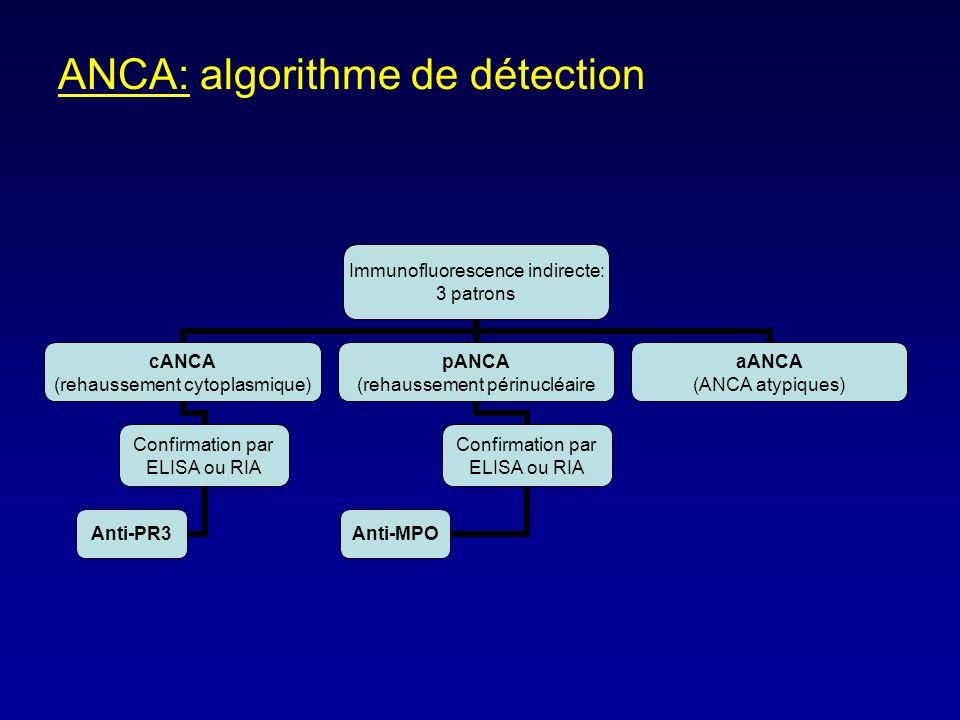 ANCA: algorithme de détection