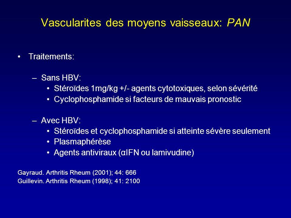 Vascularites des moyens vaisseaux: PAN