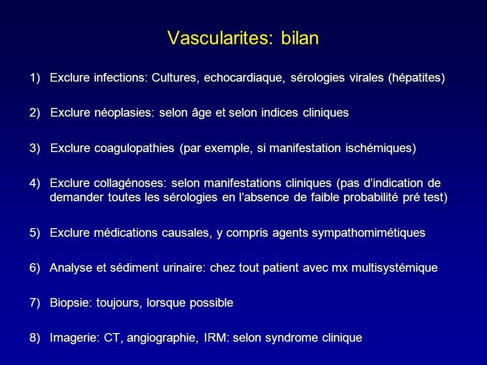 Vascularites: bilan Exclure infections: Cultures, echocardiaque, sérologies virales (hépatites)