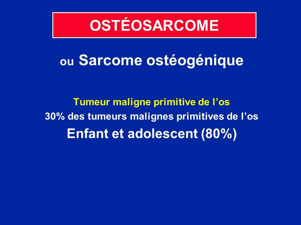 OSTÉOSARCOME Enfant et adolescent (80%) ou Sarcome ostéogénique