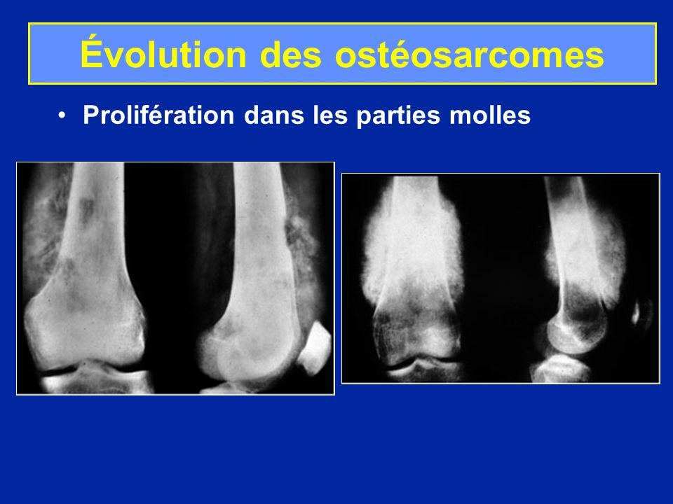 Évolution des ostéosarcomes