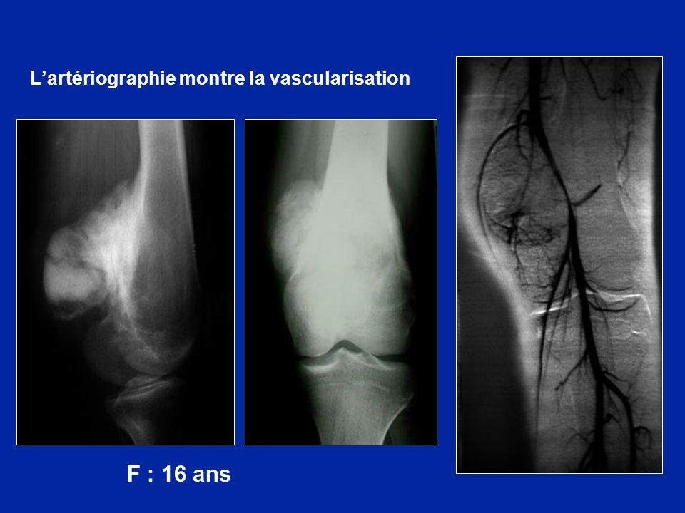 L'artériographie montre la vascularisation