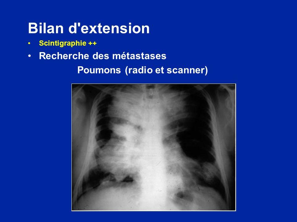 Bilan d extension Recherche des métastases Poumons (radio et scanner)