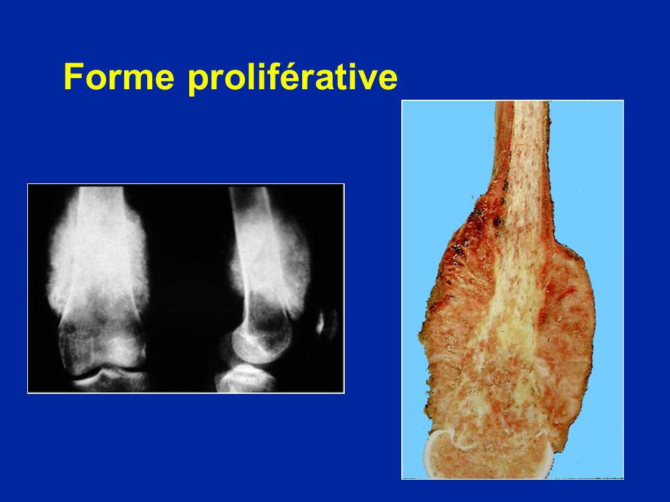 Forme proliférative