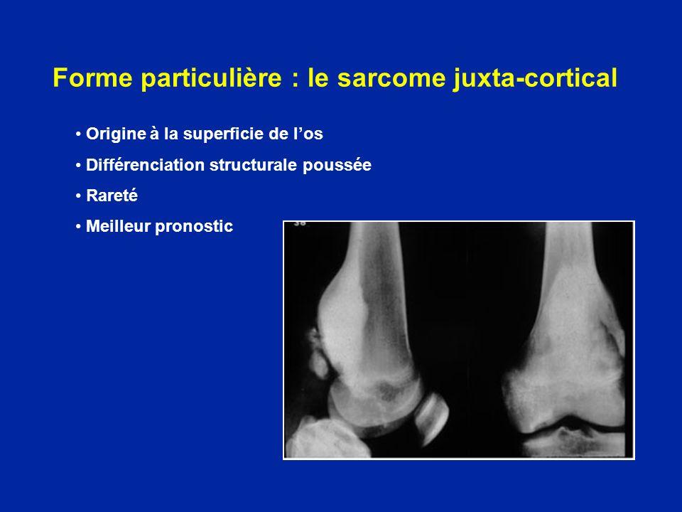 Forme particulière : le sarcome juxta-cortical