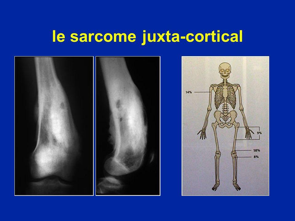 le sarcome juxta-cortical