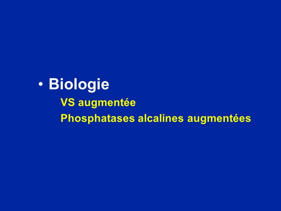 Biologie VS augmentée Phosphatases alcalines augmentées