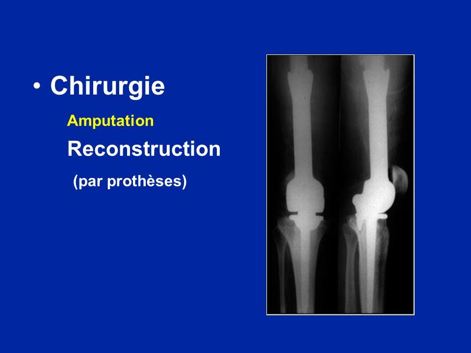 Chirurgie Amputation Reconstruction (par prothèses)