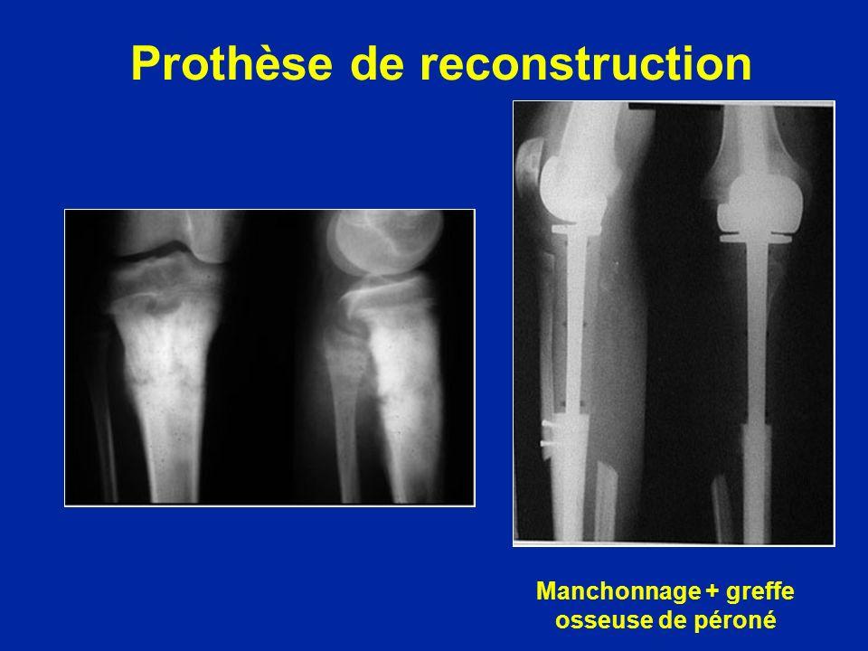 Prothèse de reconstruction