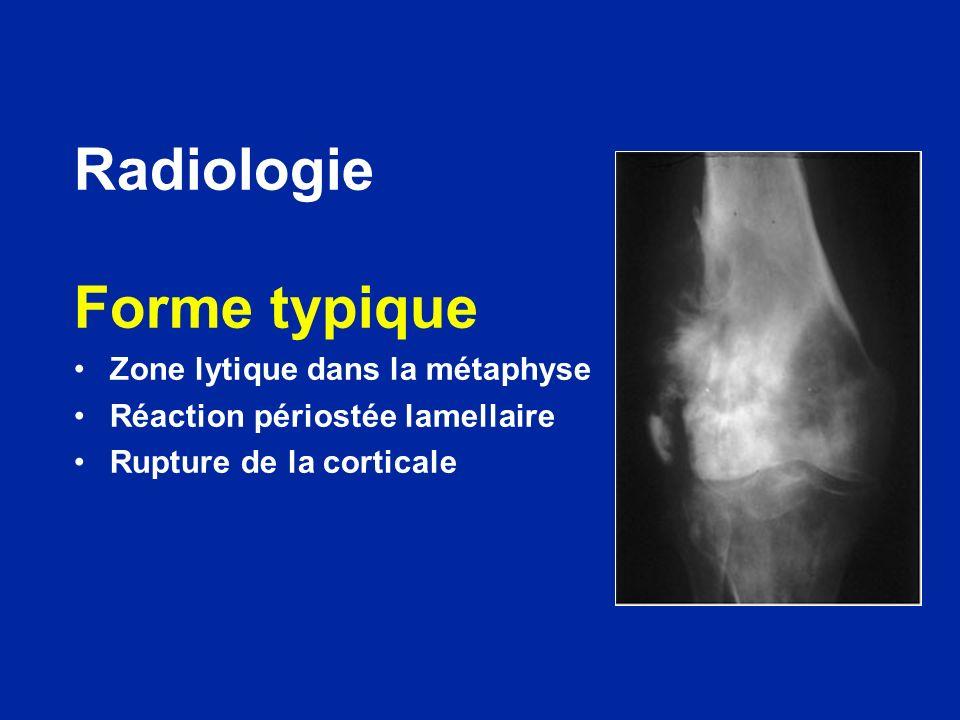Radiologie Forme typique Zone lytique dans la métaphyse