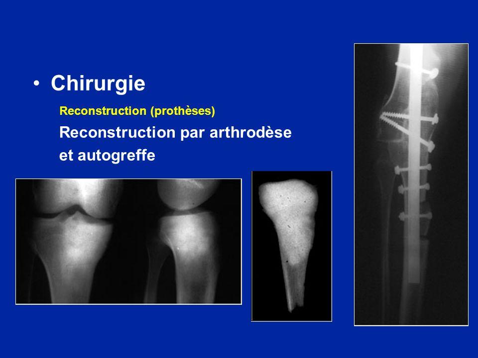 Chirurgie Reconstruction (prothèses) Reconstruction par arthrodèse