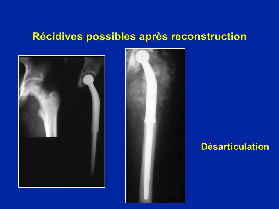 Récidives possibles après reconstruction