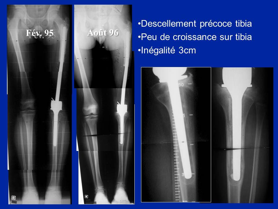 Août 96 Descellement précoce tibia Peu de croissance sur tibia Inégalité 3cm Fév. 95