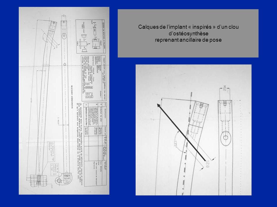 Calques de l'implant « inspirés » d'un clou d'ostéosynthèse reprenant ancillaire de pose