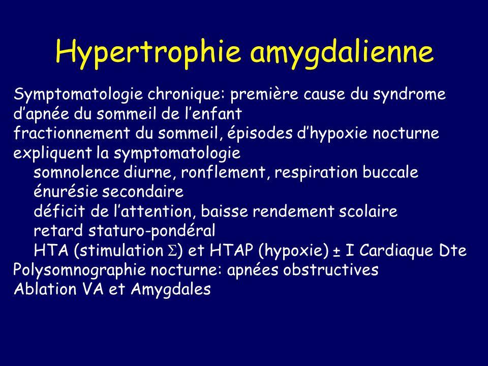 Hypertrophie amygdalienne