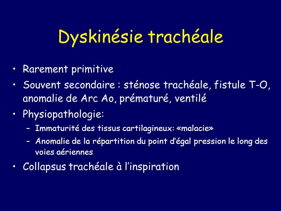 Dyskinésie trachéale Rarement primitive