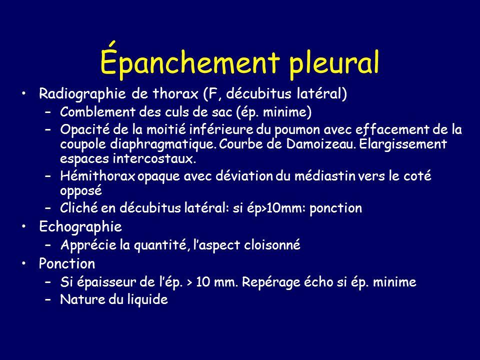 Épanchement pleural Radiographie de thorax (F, décubitus latéral)