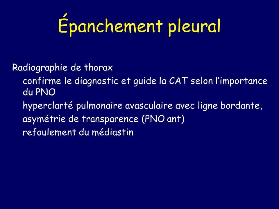 Épanchement pleural Radiographie de thorax