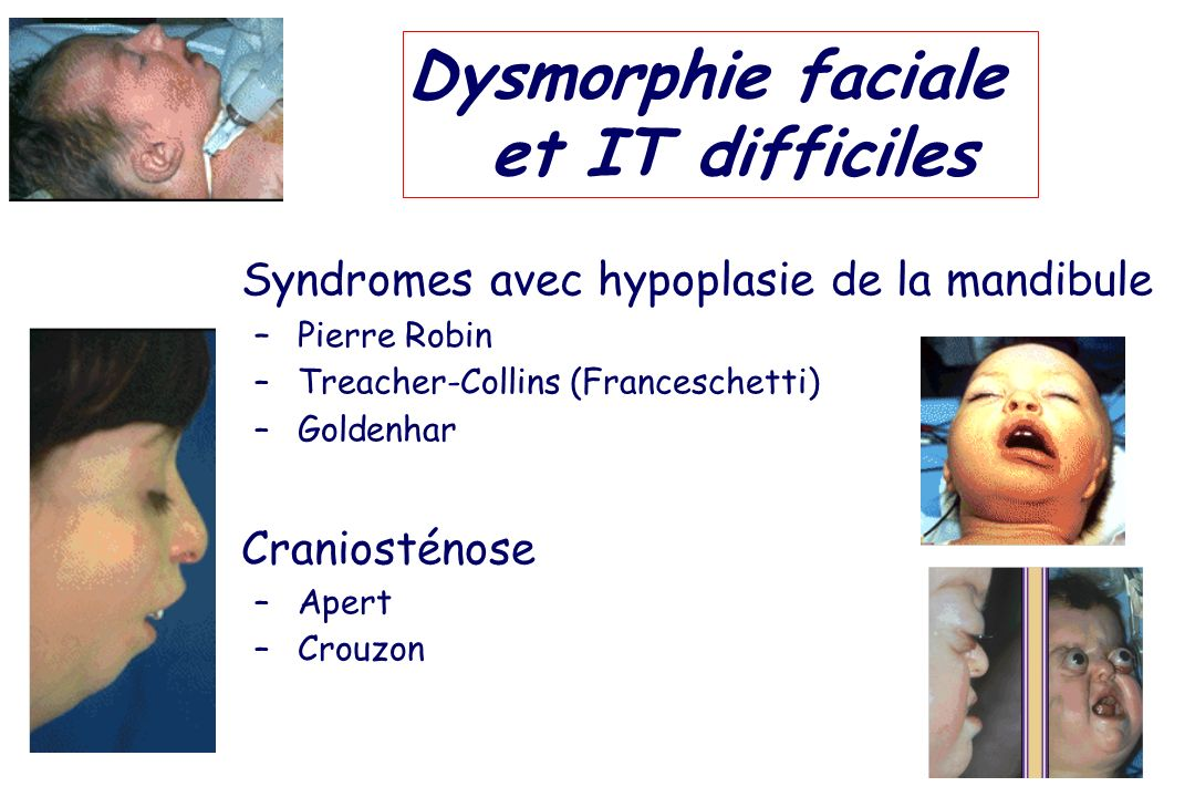 Dysmorphie faciale et IT difficiles