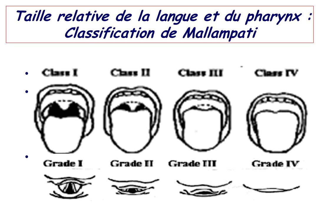 Taille relative de la langue et du pharynx : Classification de Mallampati