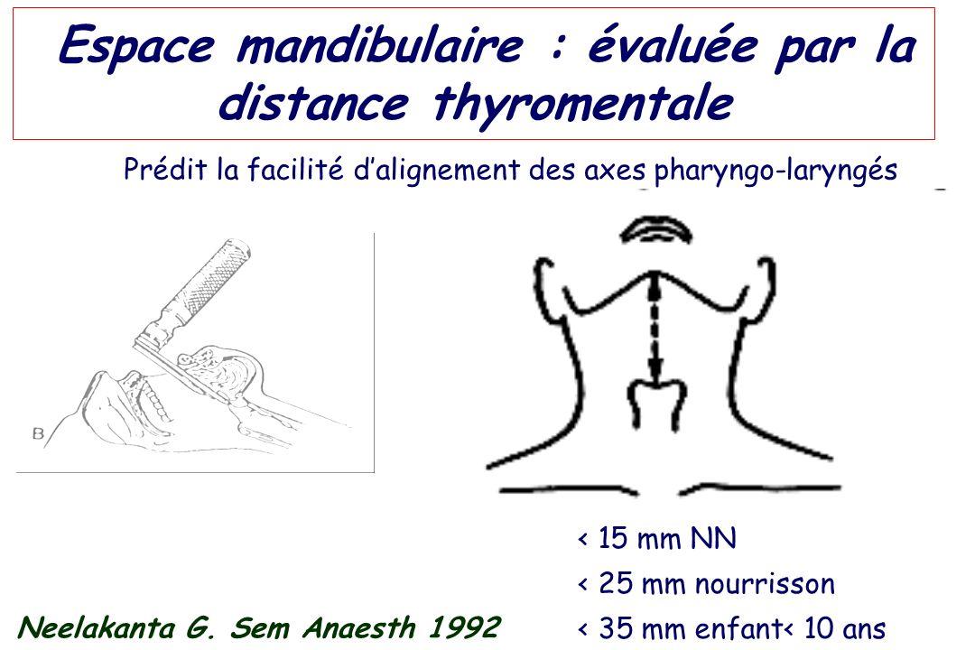 Espace mandibulaire : évaluée par la distance thyromentale