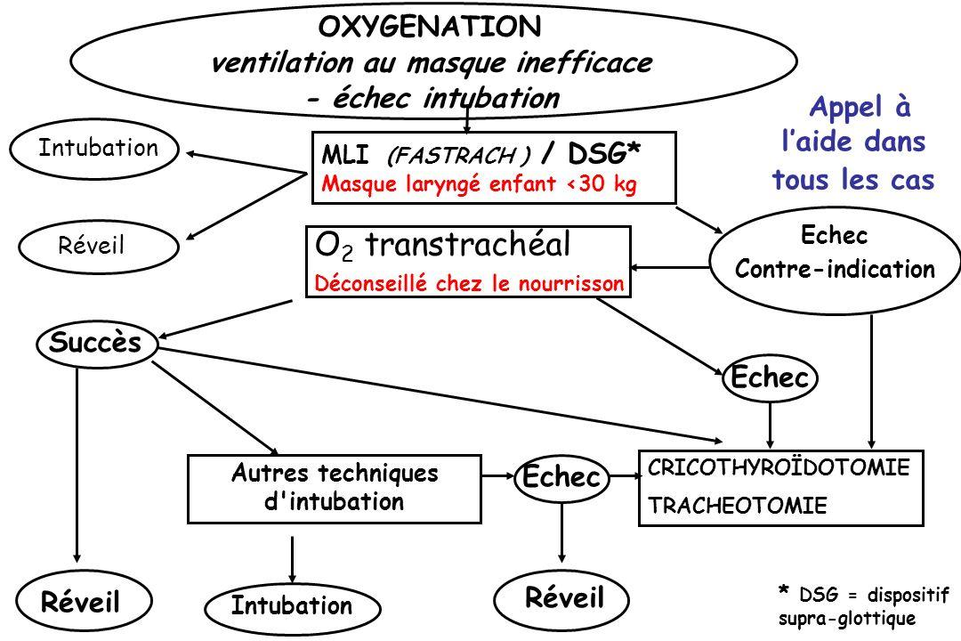 O2 transtrachéal Déconseillé chez le nourrisson