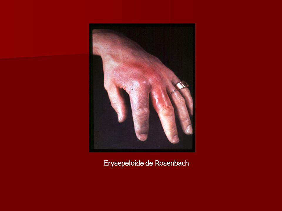 Erysepeloide de Rosenbach